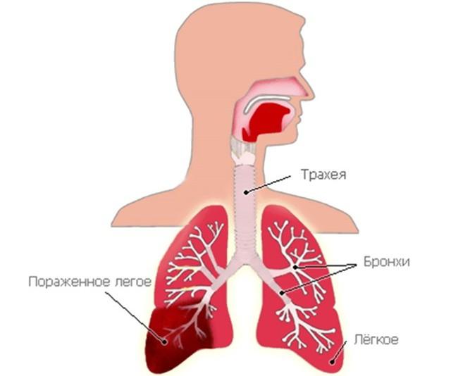 Сколько лечится пневмония у взрослых и какие прогнозы?